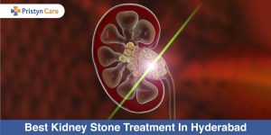 Best-Kidney-Stone-Treatment-In-Hyderabad