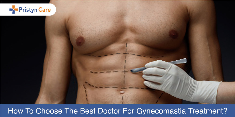 How-To-Choose-The-Best-Doctor-For-Gynecomastia-Treatment