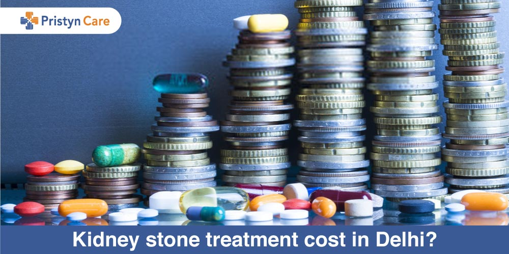 Kidney-stone-treatment-cost-in-Delhi