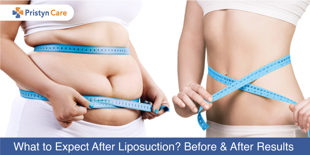 What-to-Expect-After-Liposuction-Before-and-After-Results