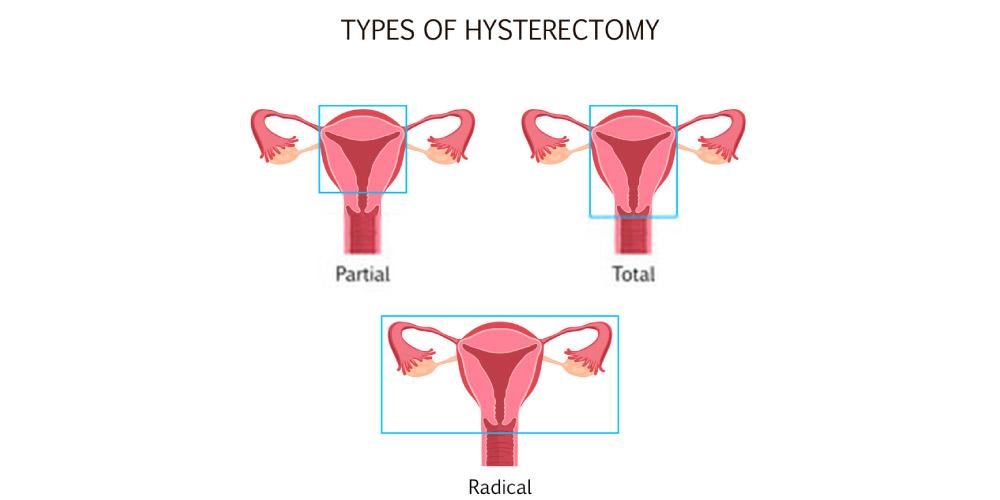 types of hysterectomy- uterine fibroids treatment