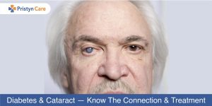 diabetes-and-cataract-know-the-connection-and-treatment