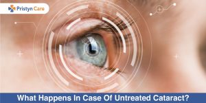 what-happens-in-case-of-untreated-cataract