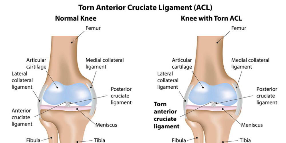 ACL rupture grade: cause, symptom, treatment