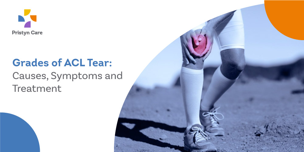 Grades of ACL Tear: Causes, Symptoms and Treatment