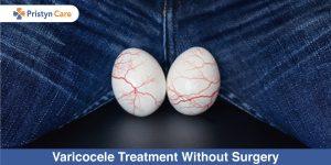Varicocele-Treatment-Without-Surgery