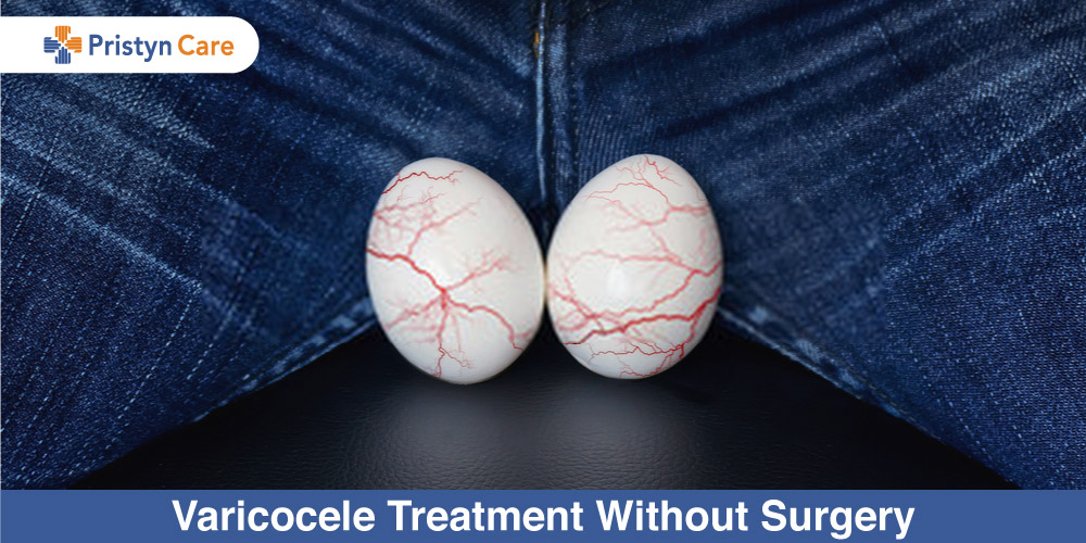 Varicocele-Treatment-Without-Surgery