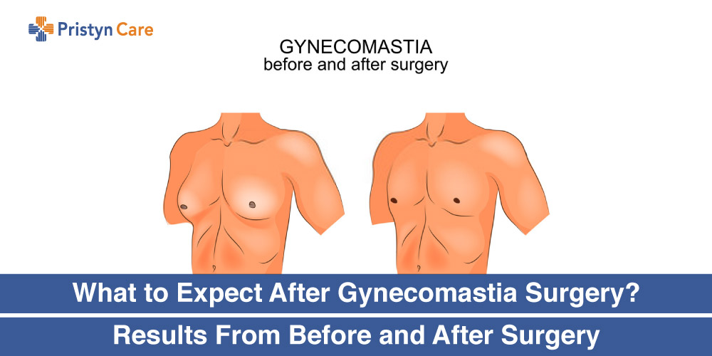 What-to-Expect-After-Gynecomastia-Surgery-Results-From-Before-and-After-Surgery