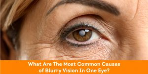 What-Are-The-Most-Common-Causes-of-Blurry-Vision-In-One-Eye