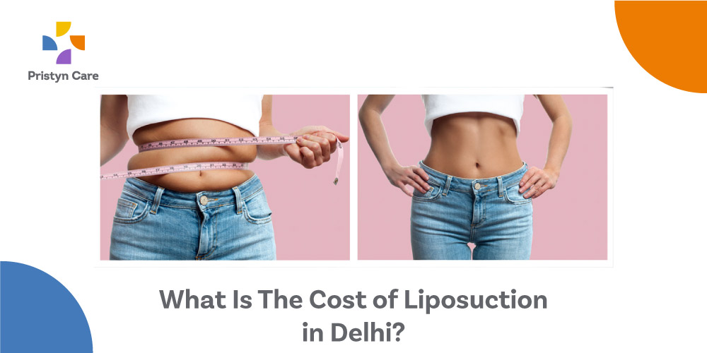 What-Is-The-Cost-of-Liposuction-in-Delhi