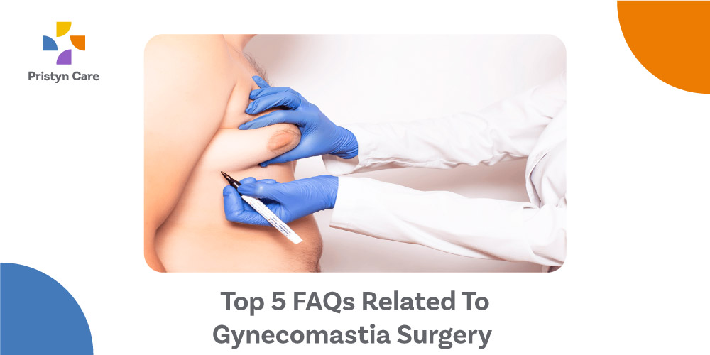 Top-5-FAQs-Related-To-Gynecomastia-Surgery
