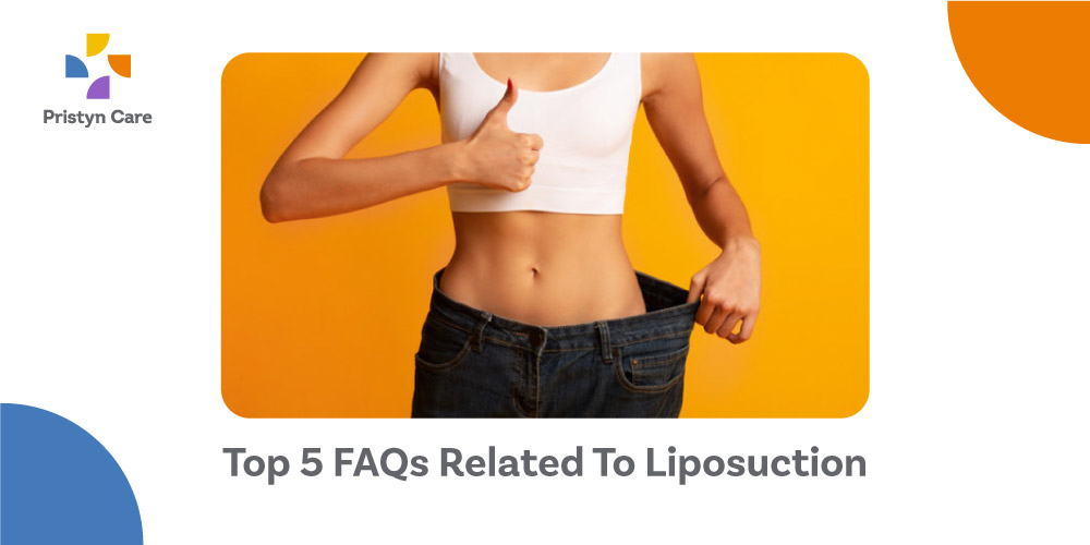Top-5-FAQs-Related-To-Liposuction