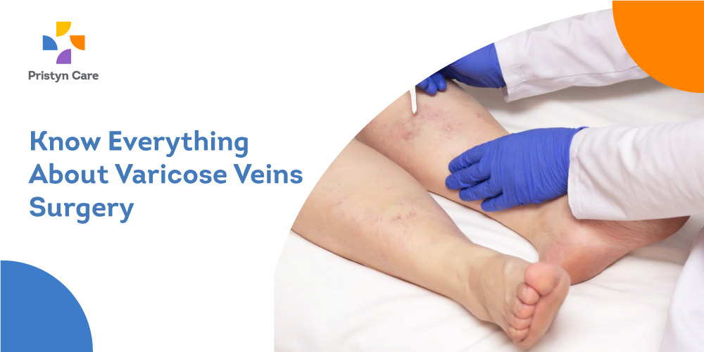 Know-Everything-About-Varicose-Veins-Surgery