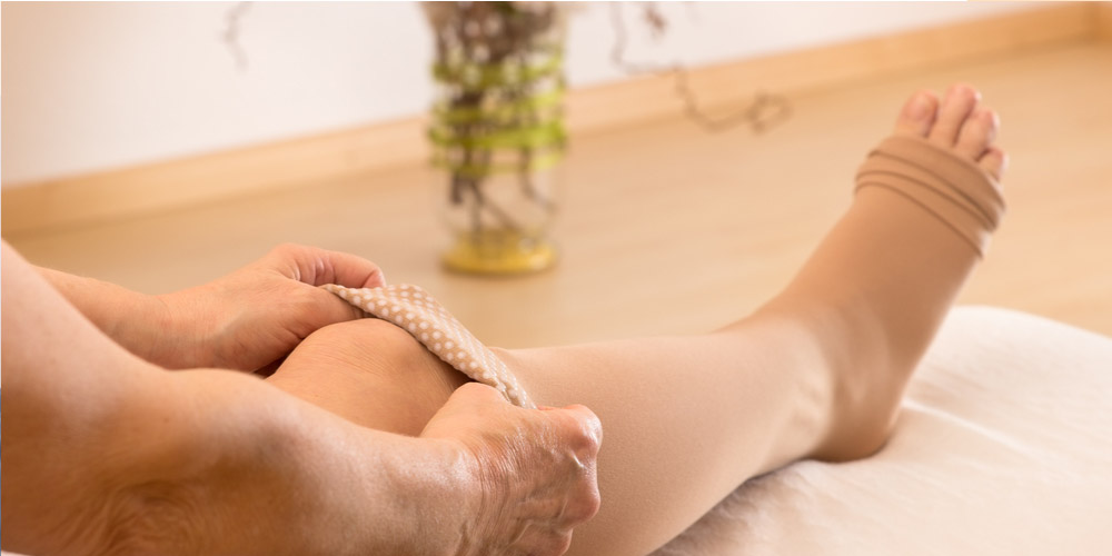 compression stockings after varicose veins surgery