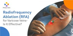 Radiofrequency Ablation for Varicose Veins