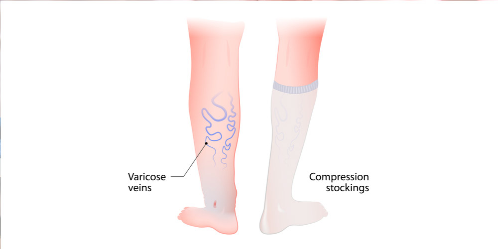 compression stockings for varicose veins in legs