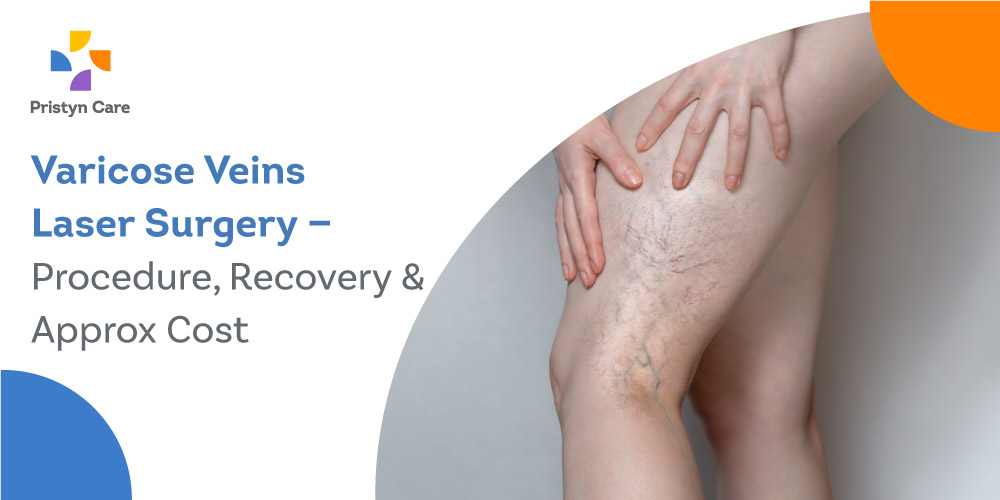 varicose-veins-laser-surgery-procedure-recovery-approx-cost