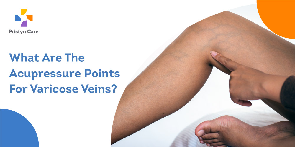 Pristyn Care Patient Review - What Are The Acupressure Points For Varicose Veins?