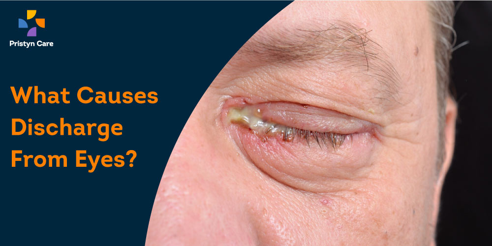 what causes eye discharge