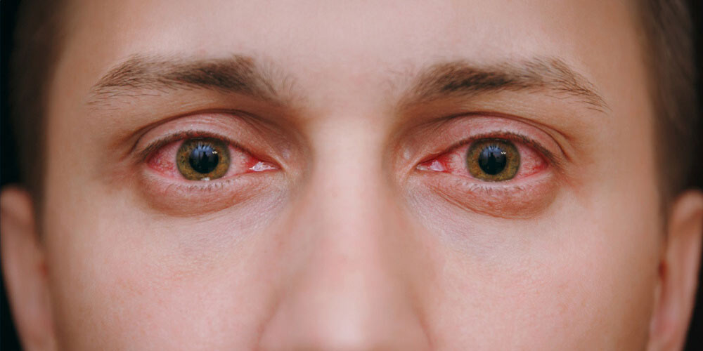causes of eye discharge