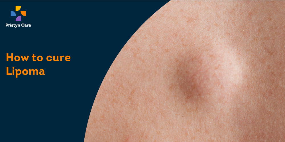 How to Cure Lipoma