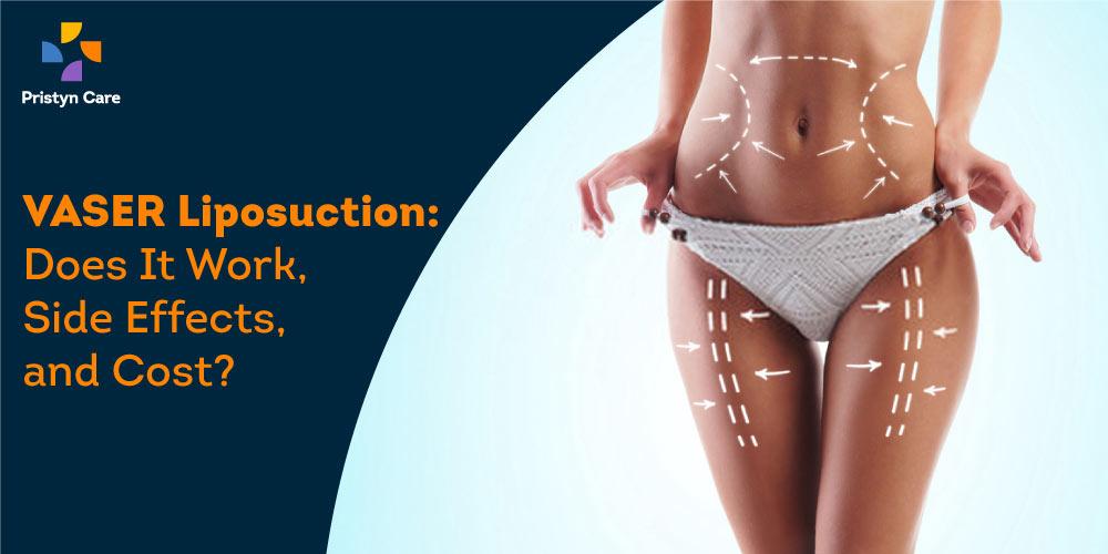 vaser-liposuction