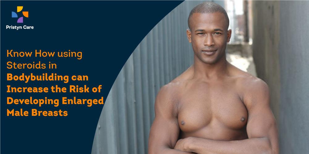 steroids-use-and-gynecomastia