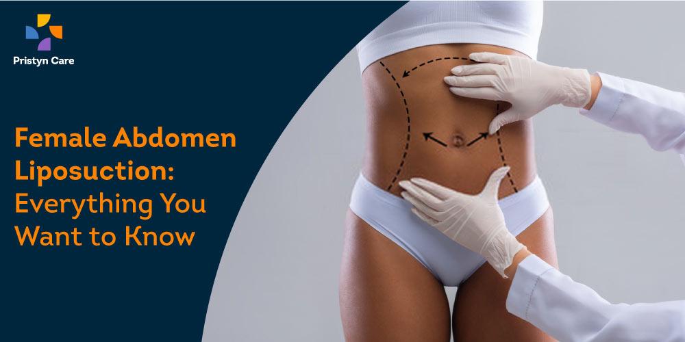 female-abdomen-liposuction