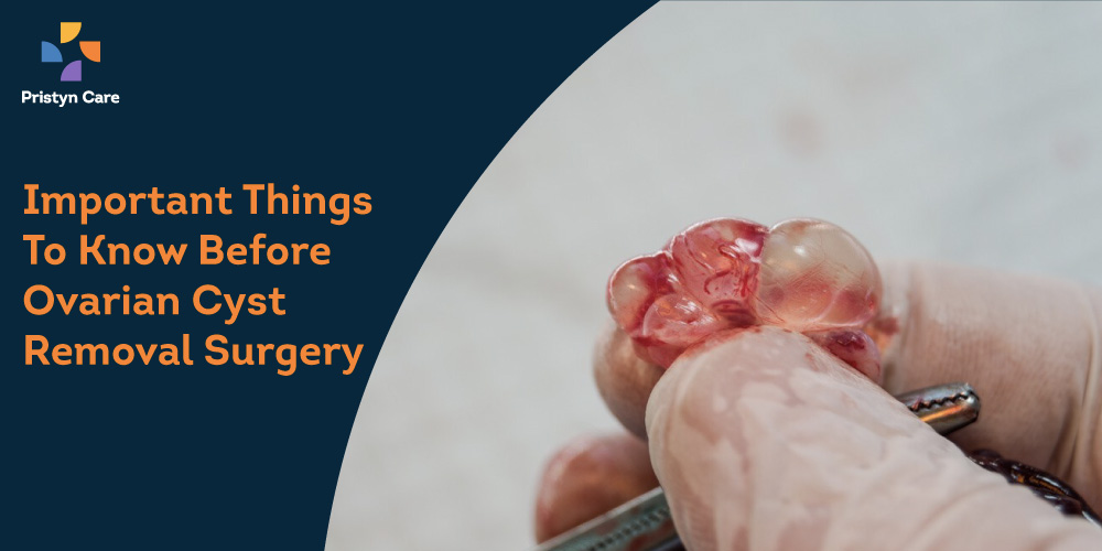 Things to know about ovarian cyst removal surgery