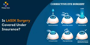 lasik-surgery-covered -under-insurance