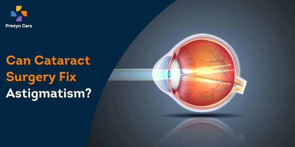 cataract-astigmatism