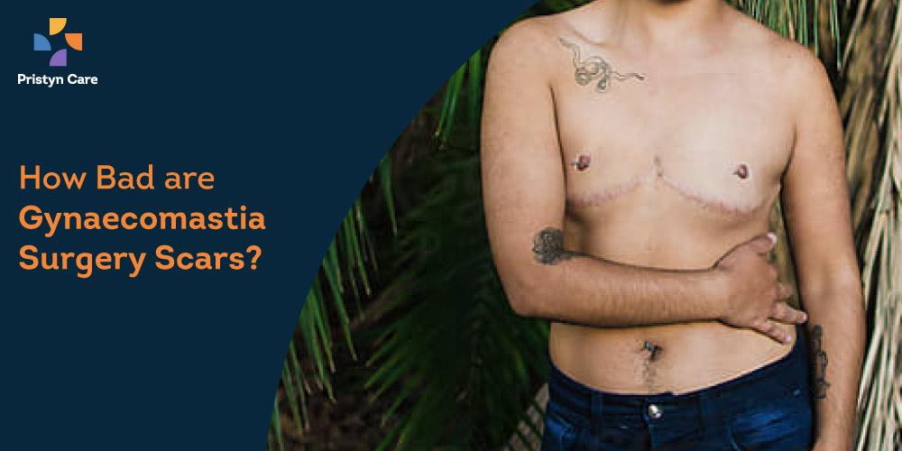 gynecomastia-surgery-scars