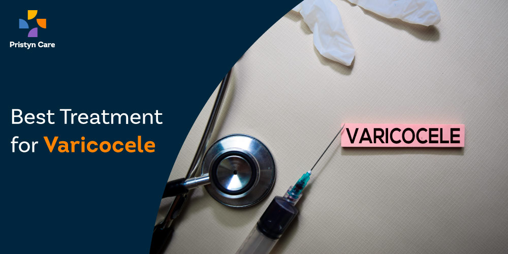 best-treatment-for-varicocele