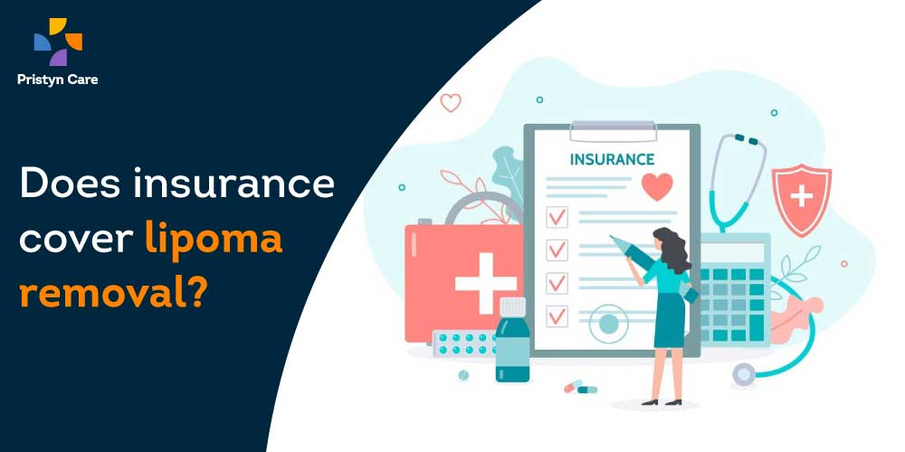 does-insurance-cover-lipoma-removal