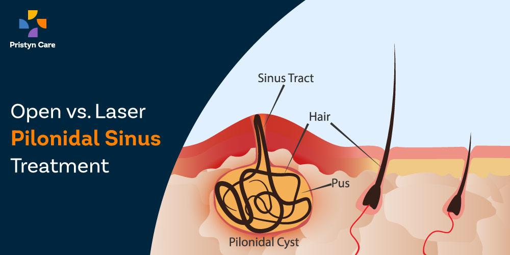 open-vs-laser-pilonidal-sinus-treatment
