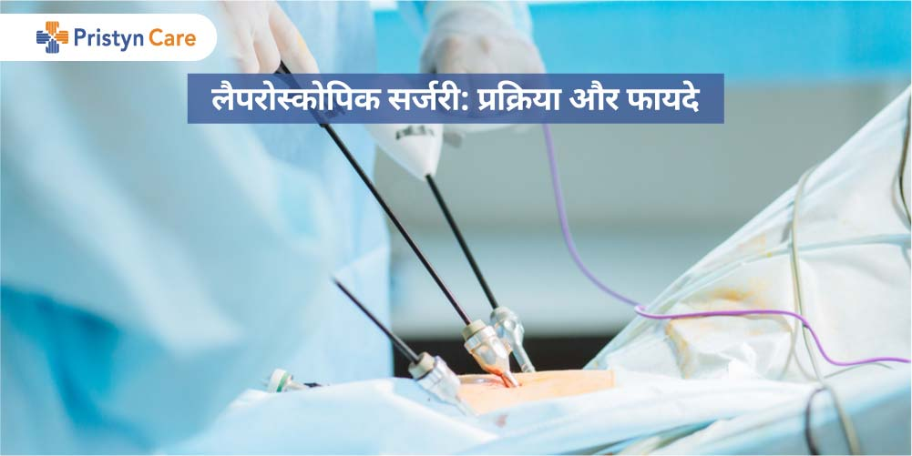 Laparoscopy in Hindi