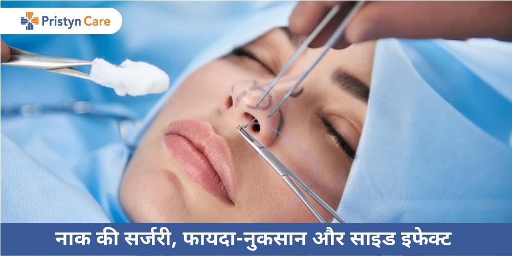 Nose surgery in Hindi