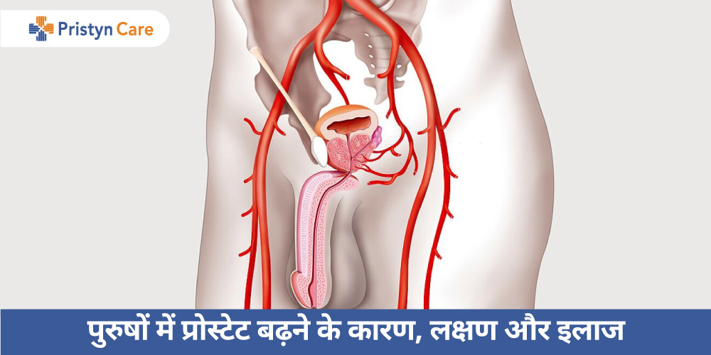 prostate-enlargement-in-hindi