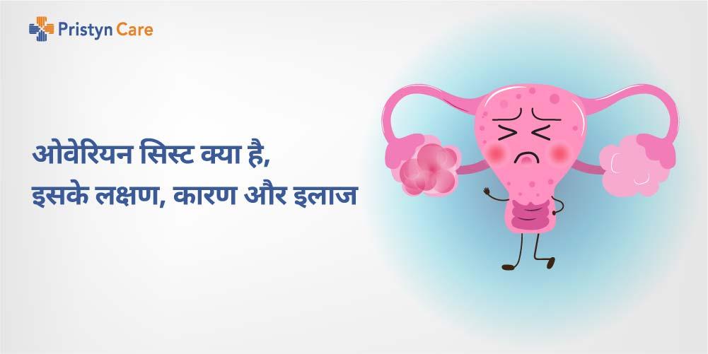 ovarian hemorrhagic cyst