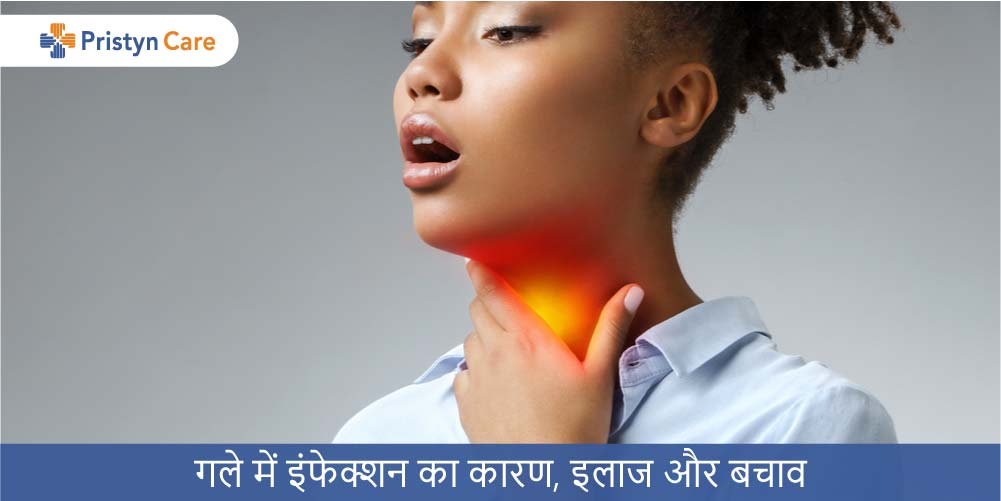 Throat-Infection-in-Hindi