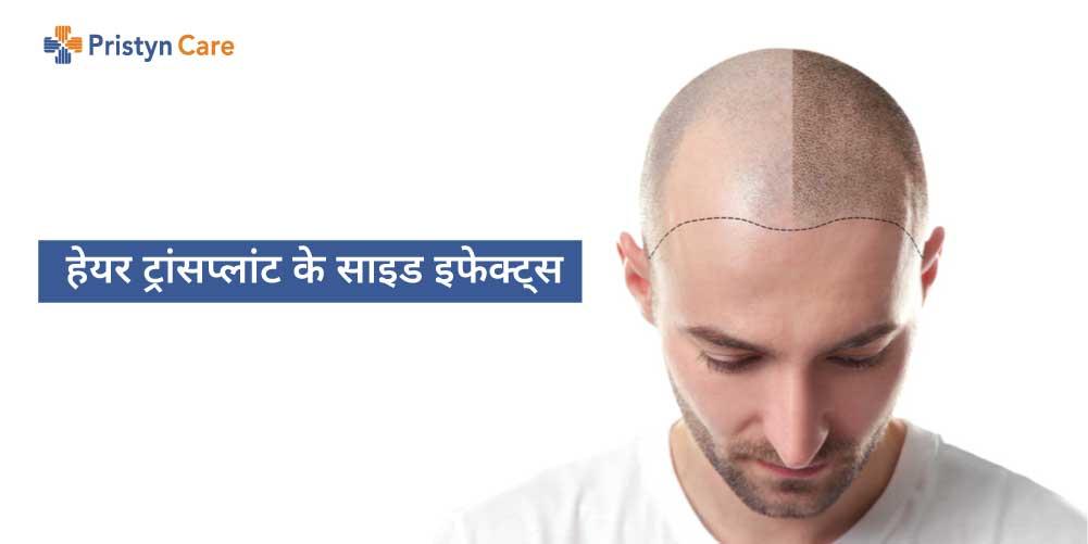 hair-transplant-ke-side-effects