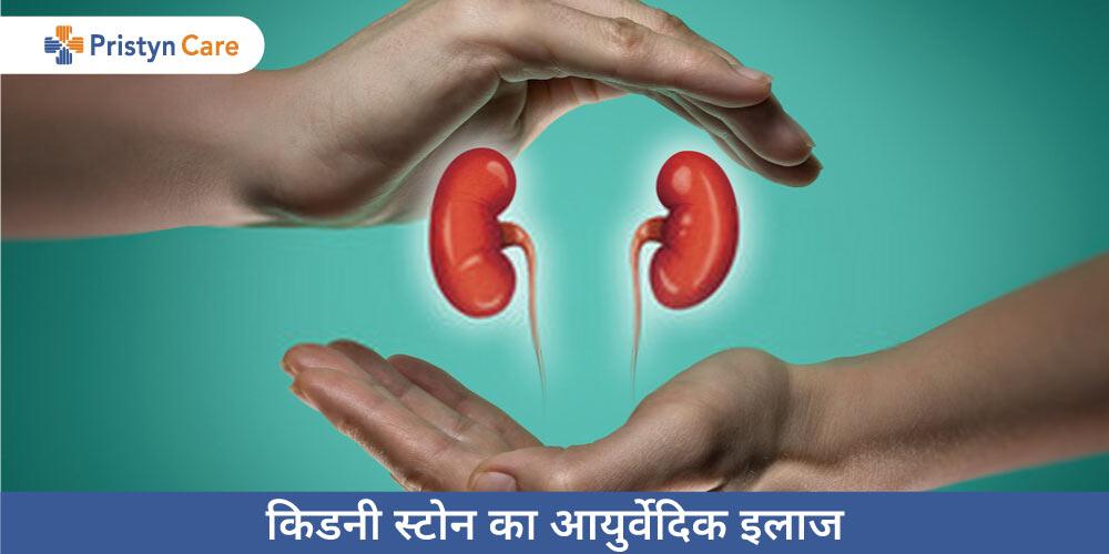 kidney-stone-ka-ayurvedik-ilaj