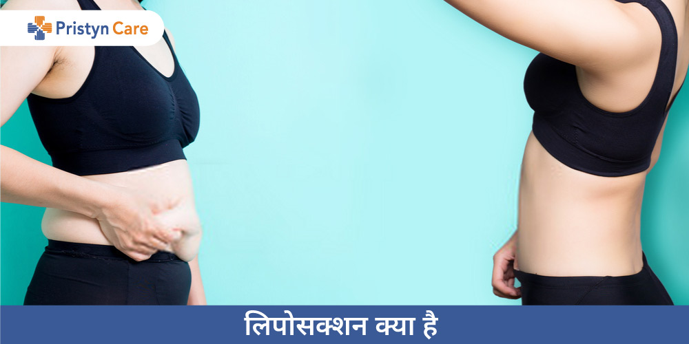 liposuction-meaning-in-hindi