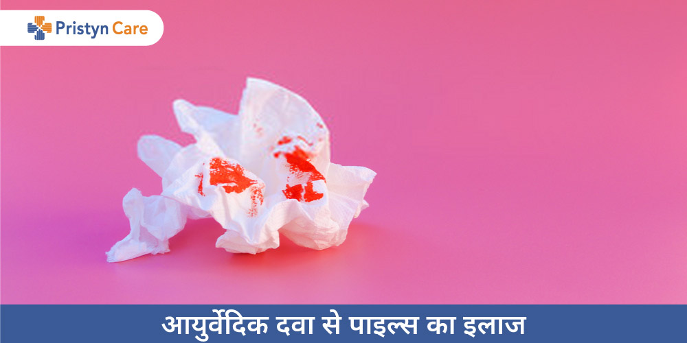 ayurvedic-treatment-of-piles-in-hindi