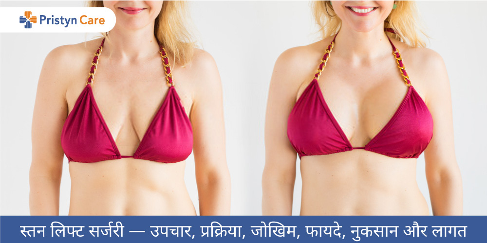 breast-lift-surgery-in-hindi