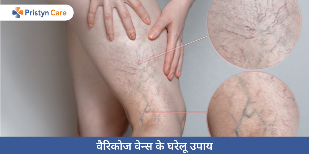 home-remedies-for-varicose-veins-in-hindi