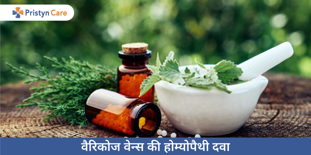 homeopathy-medicines-for-varicose-veins-in-hindi