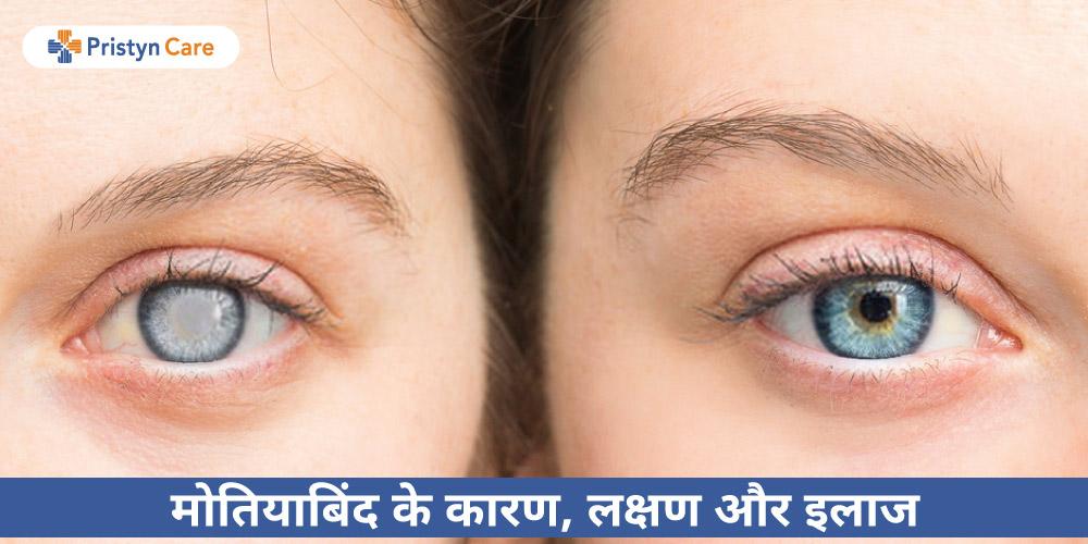 cataract-in-hindi