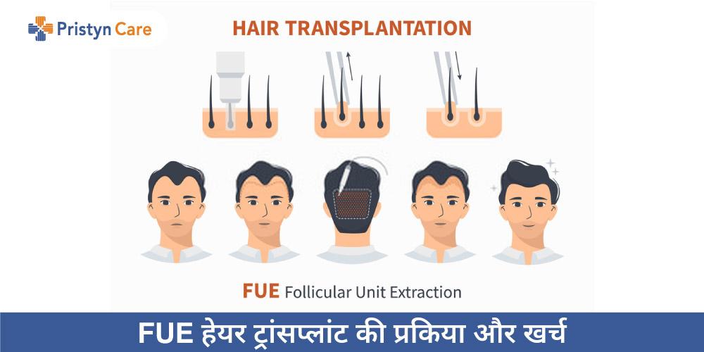 FUE hair transplant in Hindi