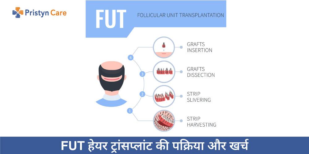 FUT Hair Transplant in Hindi
